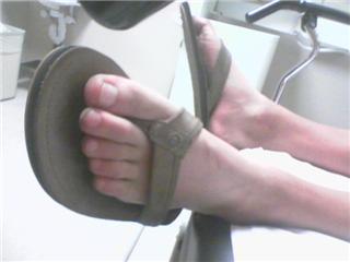 Steve_hospital_feet