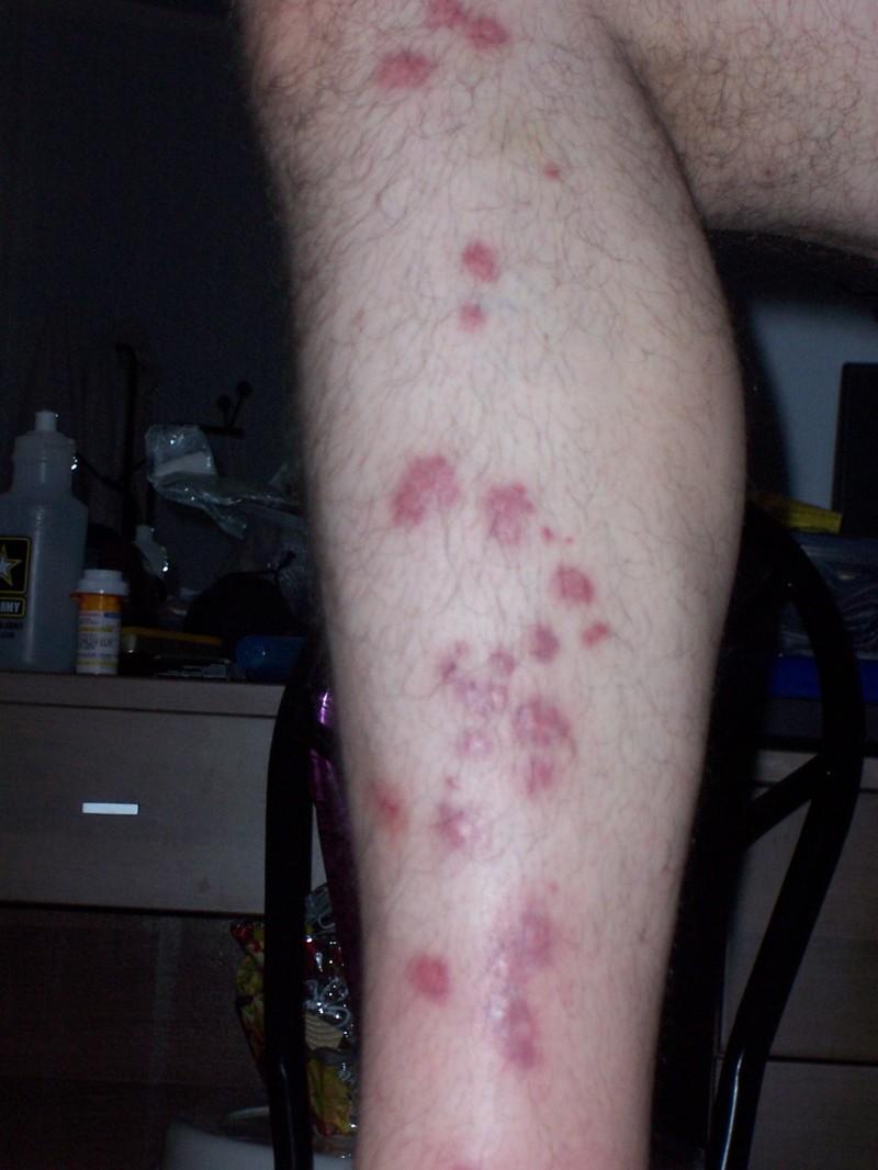 Gross_leg
